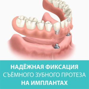 Надежные опоры для зубных протезов